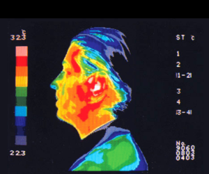 Thermography of the head