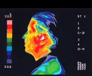 Thermographie de la tête